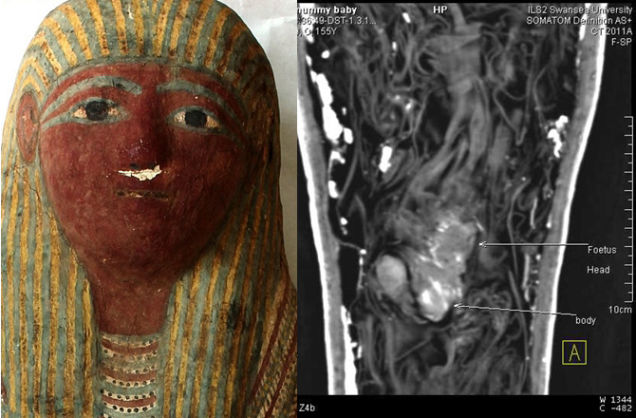 Ancient Egyptian Mummy Determined to be Unborn Baby at 12 ...