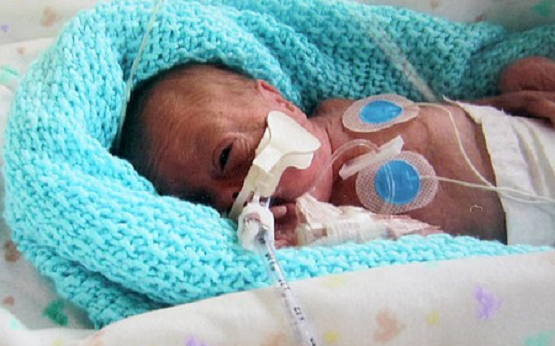 characteristics of premature babies in adulthood