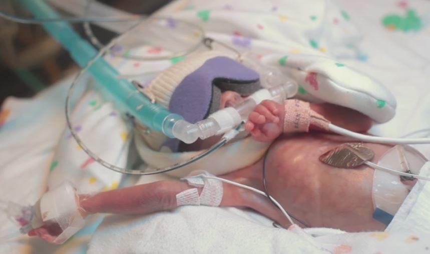 Amazing Photos of Baby Ward Born at 25 Weeks Show Unborn ...