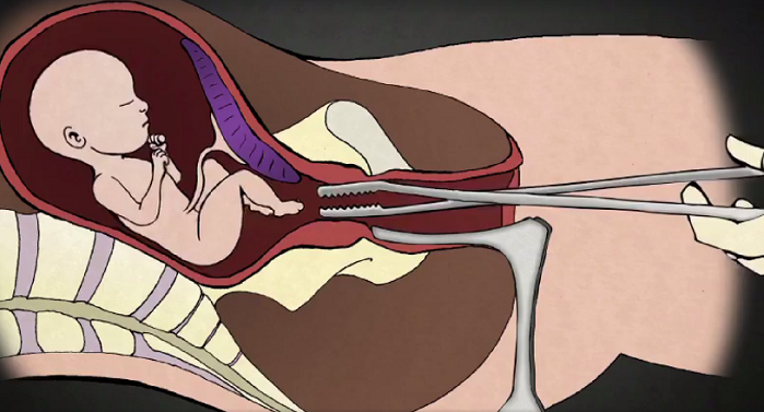 Michigan Committee Passes Bill Banning Dismemberment Abortions Tearing Babies Limb From Limb